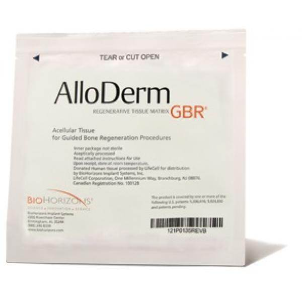 Alloderm-gbr-Implant SystemsBioHorizons