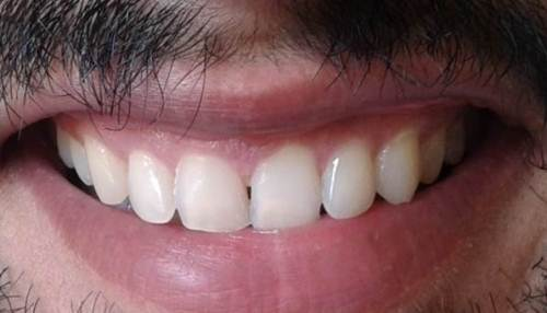 Healthy Teeth and gums-indiadentalworld