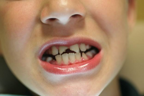 Tooth Fracture Complete Guide Types And Functions Idw