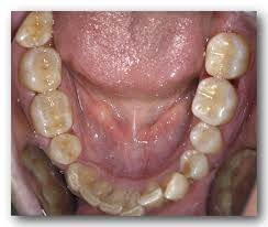 Composite fillings replacing silver fillings