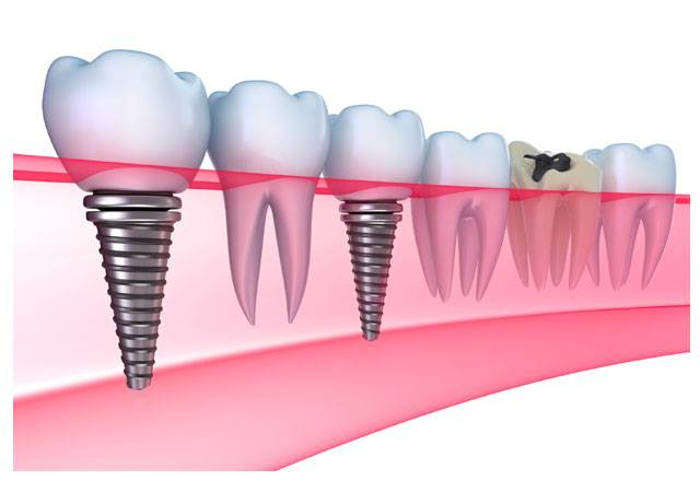 Dental implants are natural-looking replacements for missing teeth.They provide the same function as the natural tooth roots.