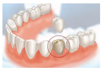 96e1abedc77 This treated tooth can fracture under chewing forces. Dental Cap (crown) is  advised to prevent the fracture of the tooth.