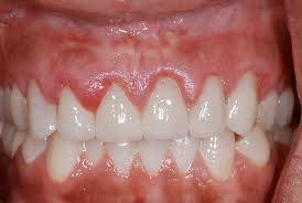 Gingivitis in relation to upper front teeth