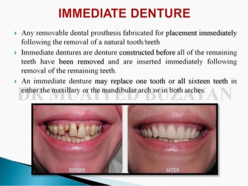 Immediate Denture1