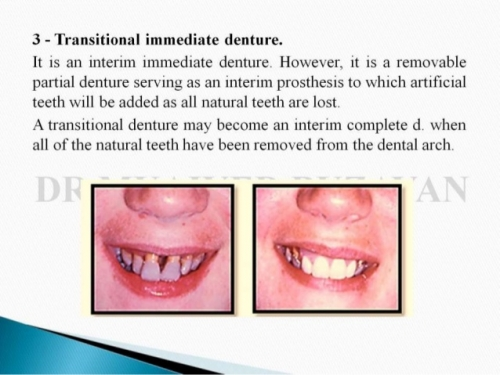 Immediate Denture2