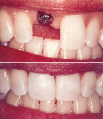 Dental Implants-Fixing tooth