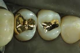 Inlays to restore large tooth defects