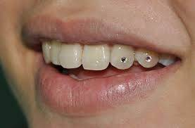 Tooth jewels on adjacent teeth