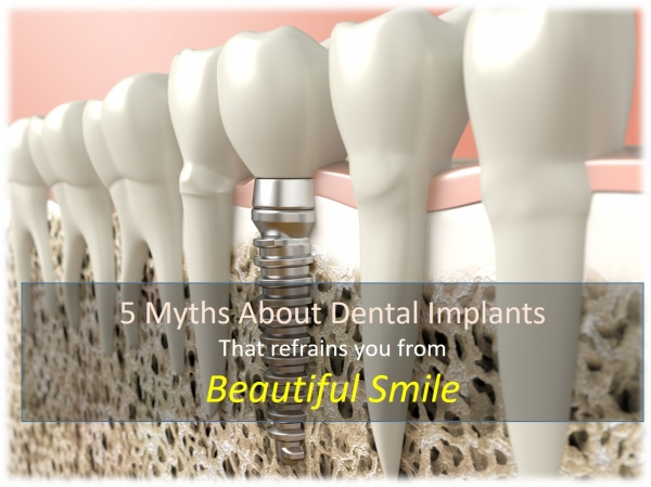 ../uploads/myths_dental_im_1500284249.jpg