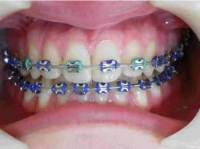 Metallic Braces