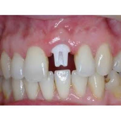 Fixed Partial Denture(bridge to replace missing teeth)