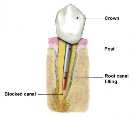 Post and Core for a front tooth