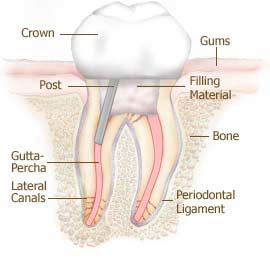 What is the treatment for teeth fractured or tooth broken ...