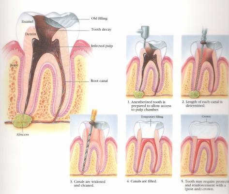 Steps Of RCT-Root Canal Treatment