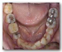 Silver fillings for decayed teeth