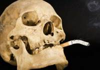 Studies show that smoking is a major risk factor for periodontitis. Smoking affects the periodontal ligament as well as supporting bone thereby reducing the attachment of tooth to bone