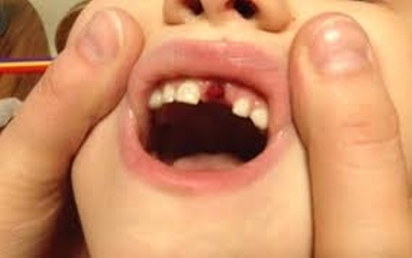 ../uploads/teeth-avulsion_1530635907.jpg