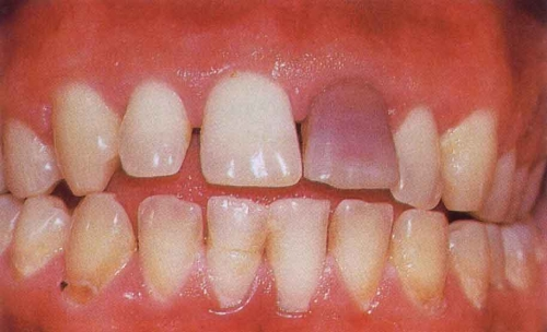 What Are The Reasons For Tooth Discoloration Idw