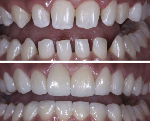What is the treatment for gaps between teeth? - IDW