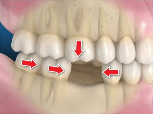 Disturbance in surrounding teeth