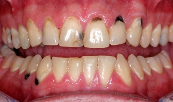 Tooth decay in upper front teeth